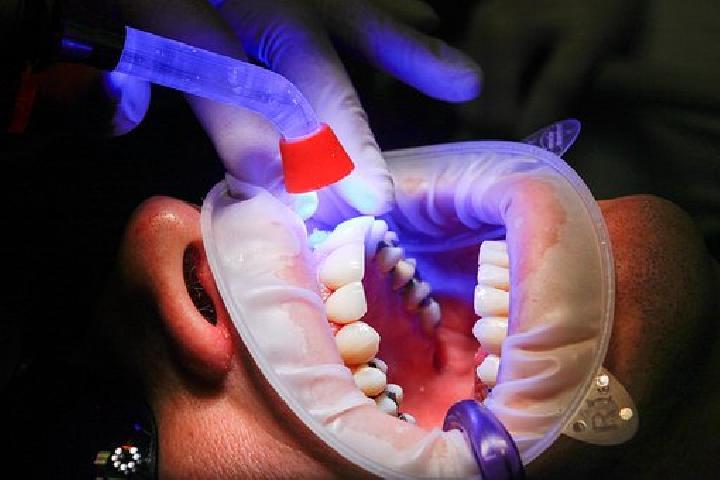 Perawatan Gigi Berlubang Ada 5 Tahapannya