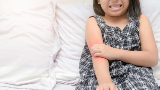 Karena Kondisi Ini, Nyamuk Lebih Sering Gigit Anak Tertentu Dibanding yang Lain
