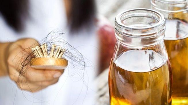 Rambut Rontok Secara Tiba-tiba, Waspada Penyakit Autoimun Alopecia Areata