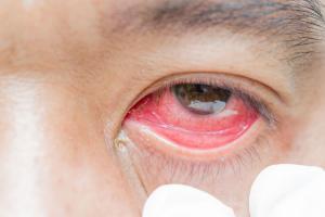 Viral, Foto Mata Merah karena Pembuluh Pecah Akibat Main Ponsel, Ini Penjelasan Dokter