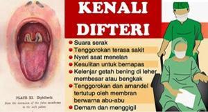 Difteri di Bojonegoro Tinggi di 2012, Terus Sekarang?
